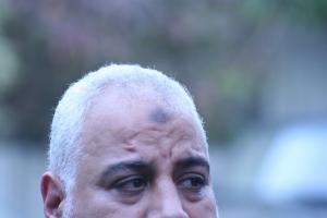 L'ecchimosi o il callo sulla fronte di molti fedeli musulmani a causa del prosternarsi